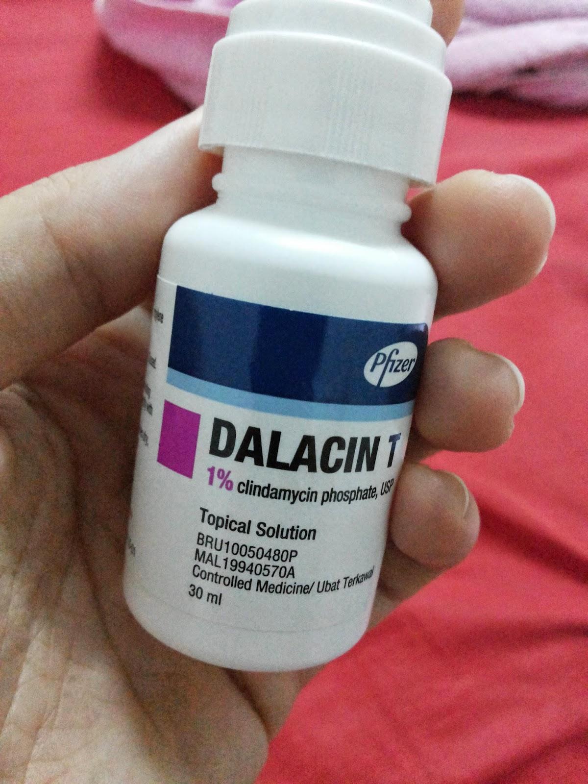 chemist on blog: dalacin T and my acne